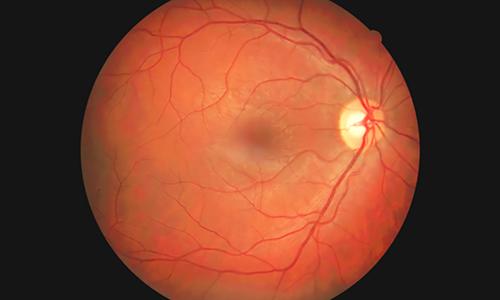 human retina image