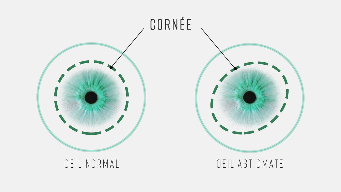 Oeil astigmate et oeil normal