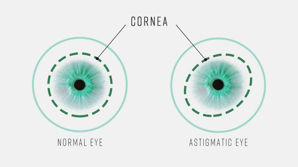 Astigmatic eye and normal eye