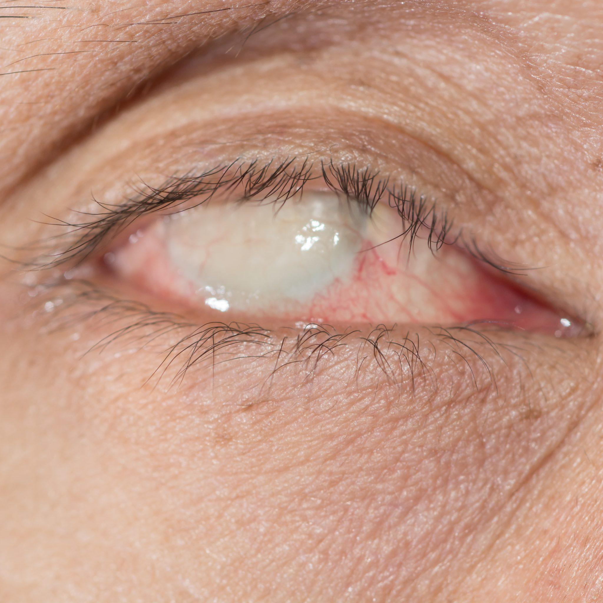 Phtisie du globe oculaire