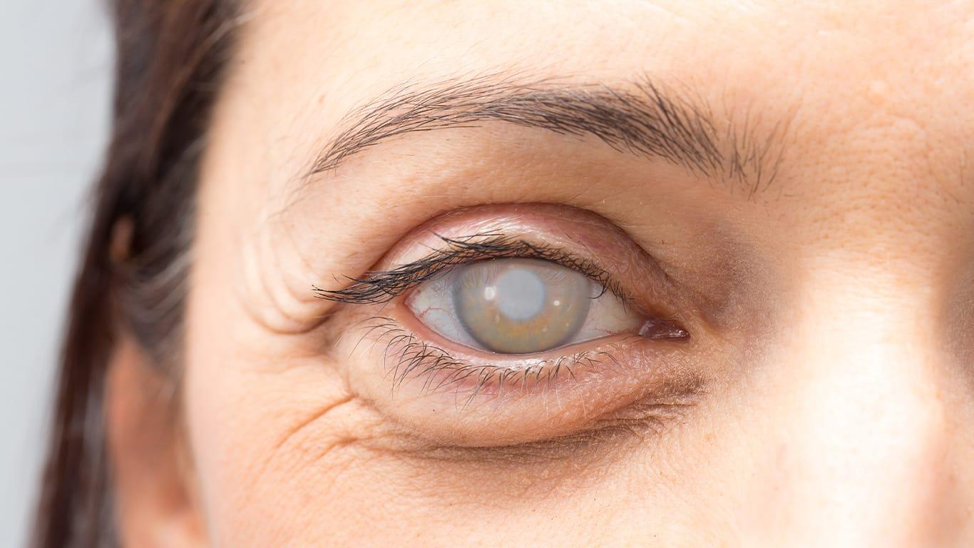 évolution de la cataracte