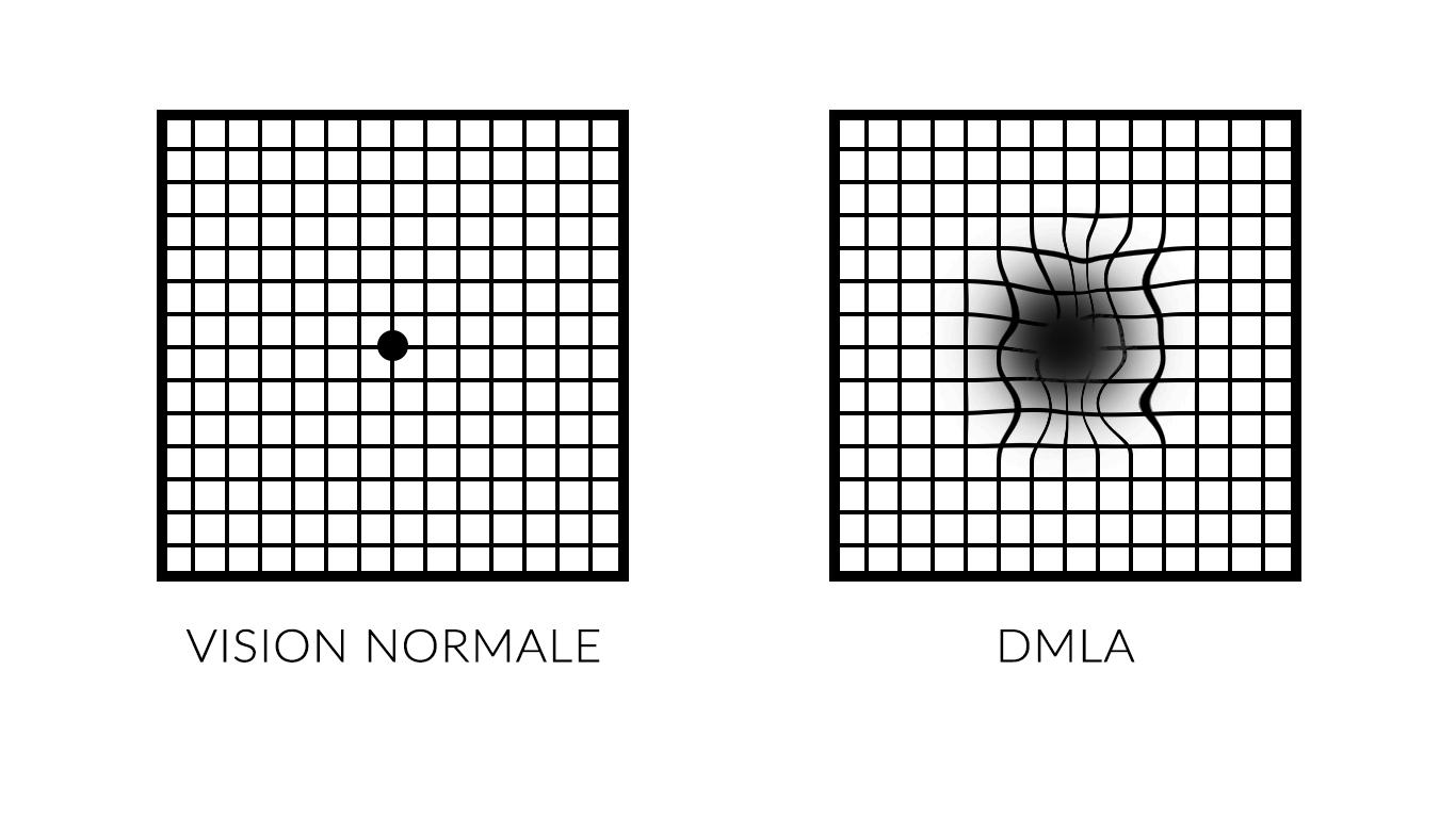 Exemple symptômes DMLA